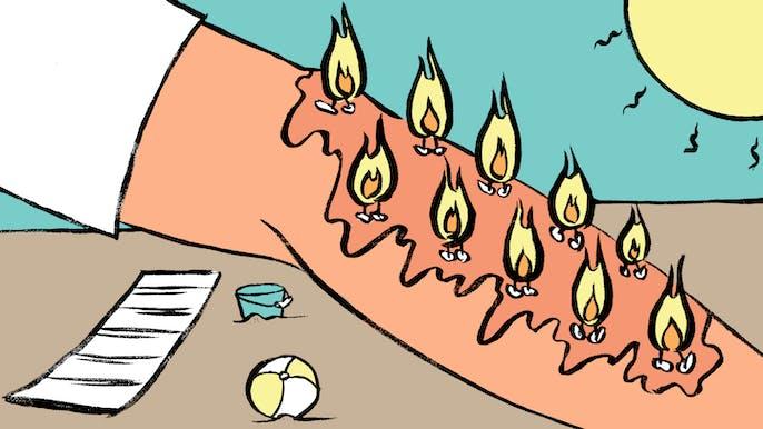 Make the Pain Go Away: Heat Rash
