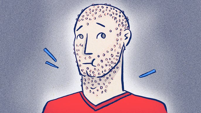Razor Bumps: Why They're There and How to Destroy Them