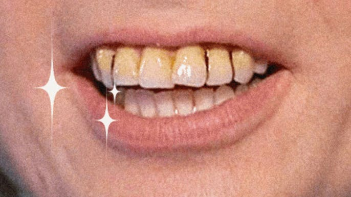 My 'Bad British Teeth' Are Healthier Than Yours, So There