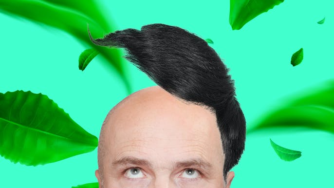 Is There Any Way to Go Bald Gracefully?